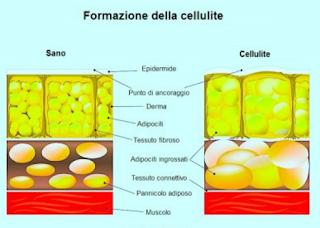 Diy Come Realizzare lo Scrub Rassodante Anticellulite  Al Caffè   formazione cellulite studio