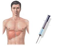 Definisi Dan Pengertian Penyakit Hepatitis
