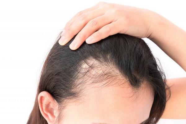 19 maneiras surpreendentes de prevenir a queda de cabelo nas mulheres