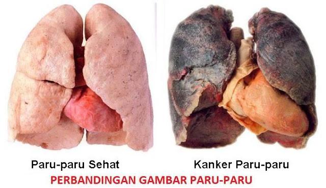 Tanda Awal dan Gejala Kanker Paru Paru