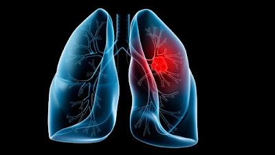 Gambar Cara Membedakan Jenis Tumor Paru Paru, Jinak Dan Ganas