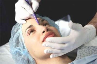 Phẫu thuật cắt da thừa mi mắt như thế nào