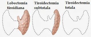 lobectomia tiroidiana