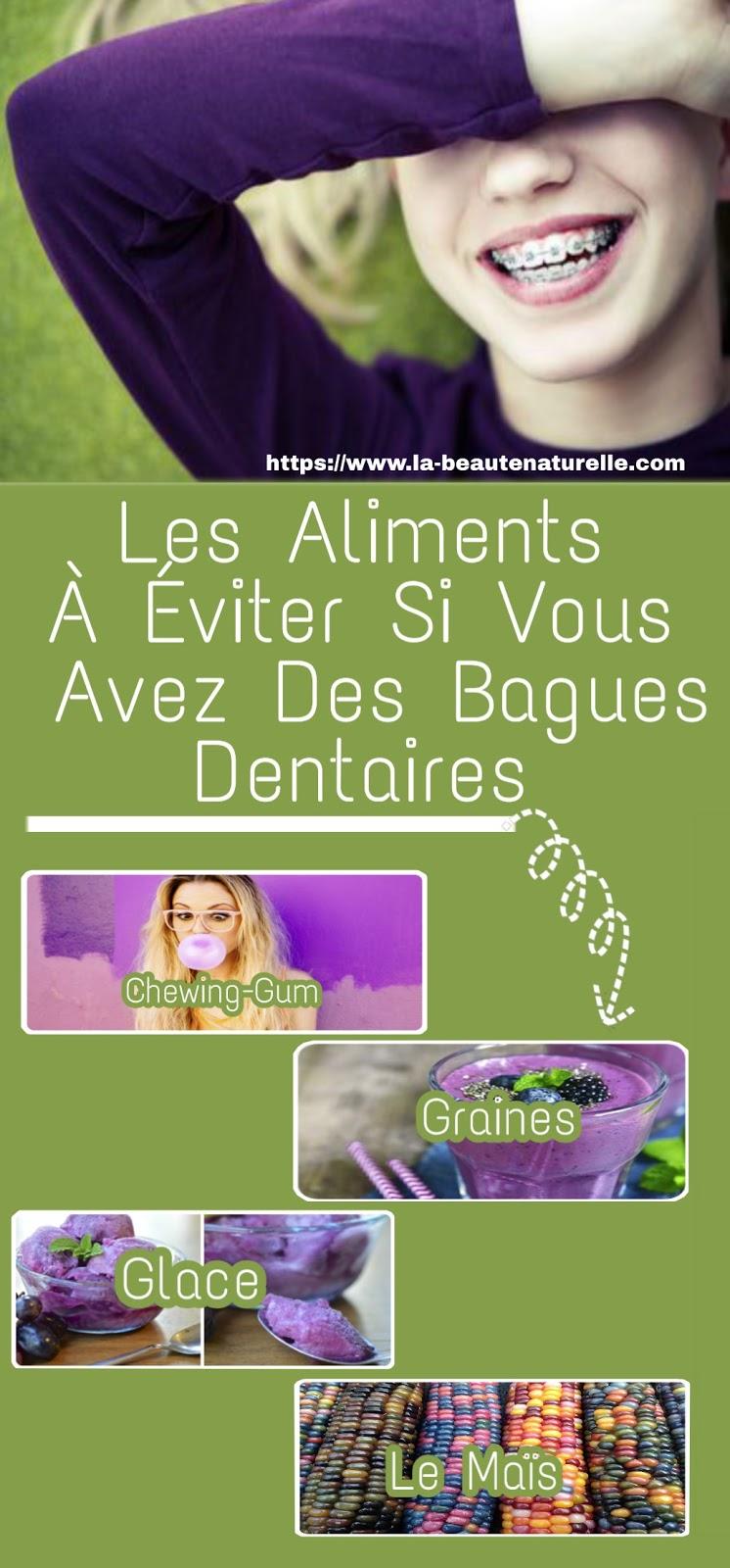 Les Aliments À Éviter Si Vous Avez Des Bagues Dentaires