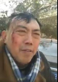 狱中遭折磨严重 刚刚获释的南京史庭福街头晕倒头部摔破(图)