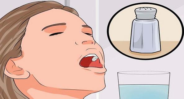 Sering Bermasalah dengan Gigi? Berikut ini Cara Sembuhkan ...