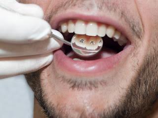 ¿Qué es  la odontología ocupacional?