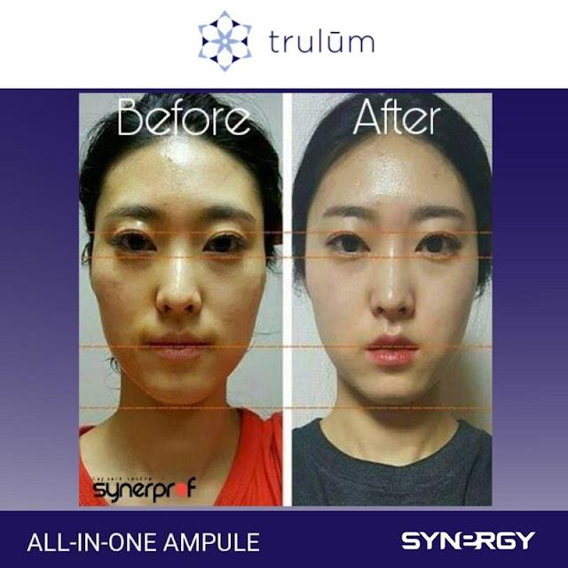 Jual Serum Penghilang Keriput Trulum Skincare Lindu Sigi
