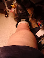 Diabetic infection and swelling