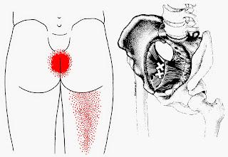 dor no quadril e dor no cóccix - músculo obturador interno