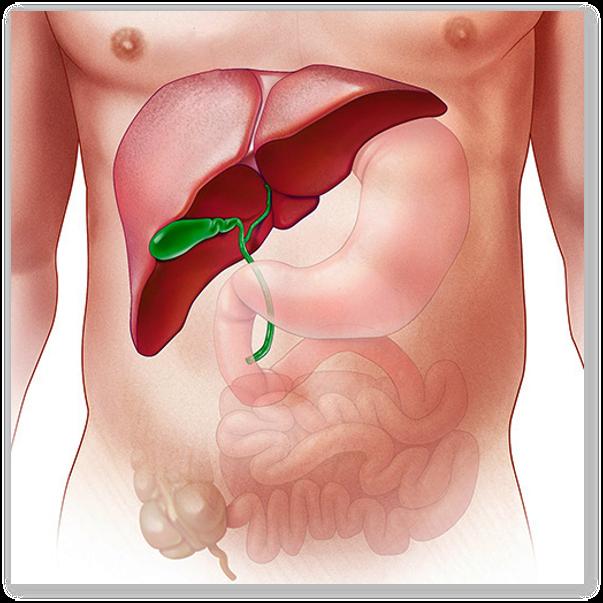 Remedii naturale impotriva diskineziei biliare si calculilor biliari
