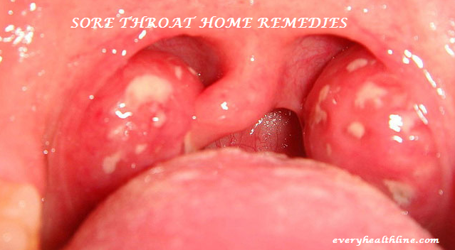 sore-throat-home-remedies-for-children-and-adult