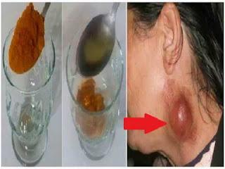 obat kanker leher yang paling ampuh