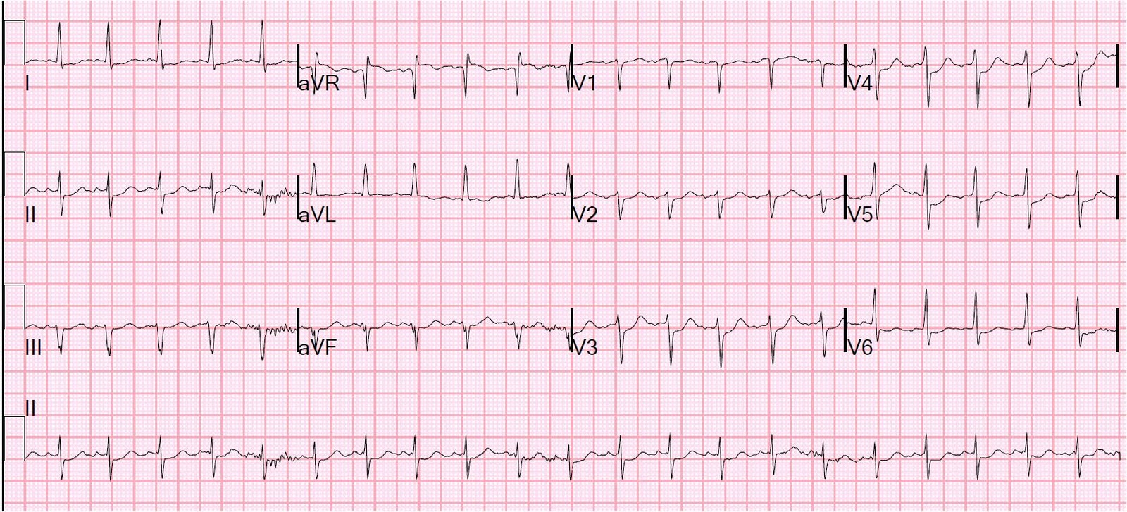 There is sinus tachycardia with diffuse ST depression (I, III, III, aVF,  V2-V6), with obligatory ST elevation in aVR (ST depression maximal in leads  II and ...