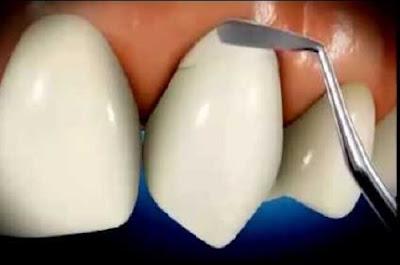 mòn chân răng có trám được không -4