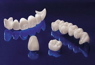 răng sứ có thời gian bảo hành bao lâu -5