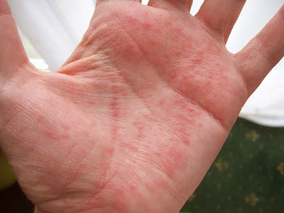 Itchy Palms Inside of Hand : Causes and Treatments
