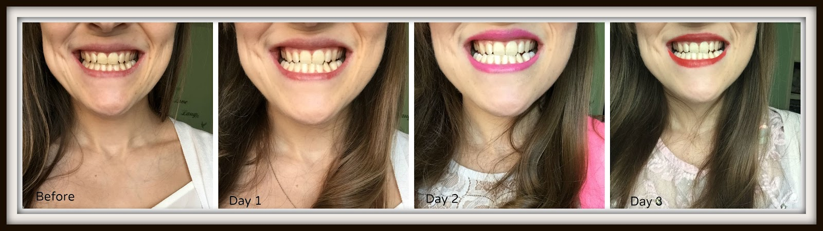 Get Whiter Teeth In 14 Days With Doll White Teeth Whitening Strips