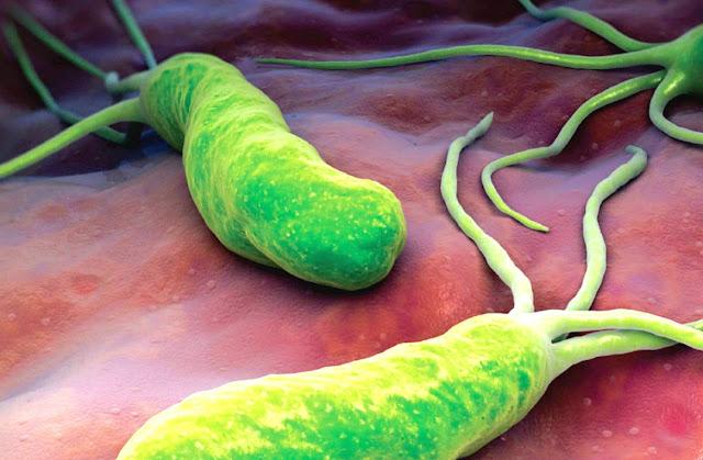 Cara mendeteksi dan mengetahui bakteri H. Pylori