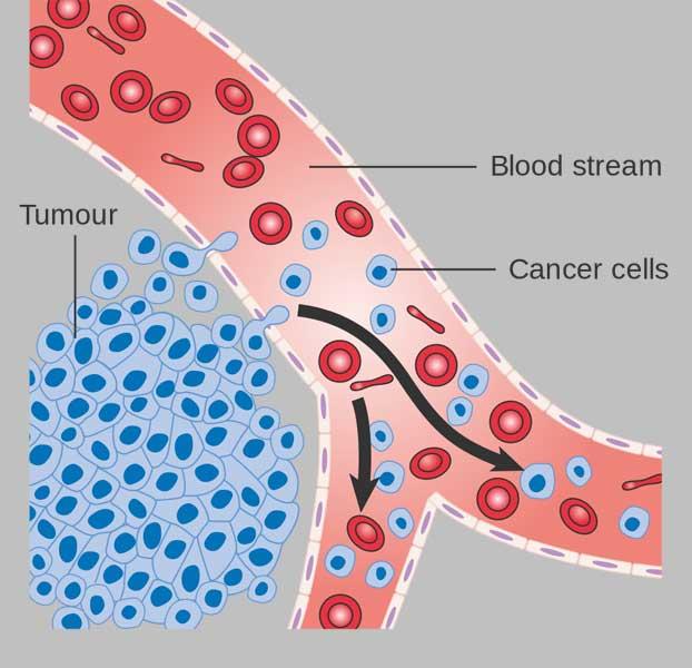 Penyebab Terjadinya Penyakit Kanker