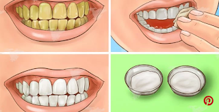 النتيجة مضمونة 100% ! تبيض أسنانك الصفراء في دقائق !!!