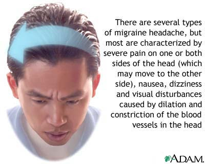 can lack of sex cause headaches