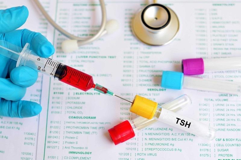 Níveis de TSH: Normal, Alto ou Baixo (incluindo níveis ótimos de tireóide)