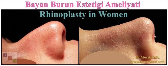 Female Nose Aesthetic Surgery - Female Nose Job - Rhinoplasty in Women Istanbul - Rhinoplasty in Women Turkey - Nose Jobs For Women - Women's Rhinoplasty - Female Rhinoplasty Istanbul - Nose Reshaping for Women