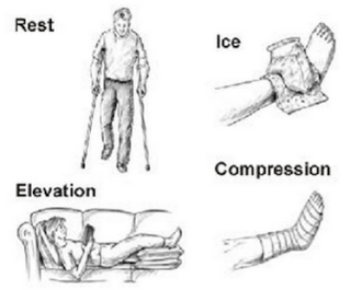 RICE (Rest, Ice, Compression and Elevation)