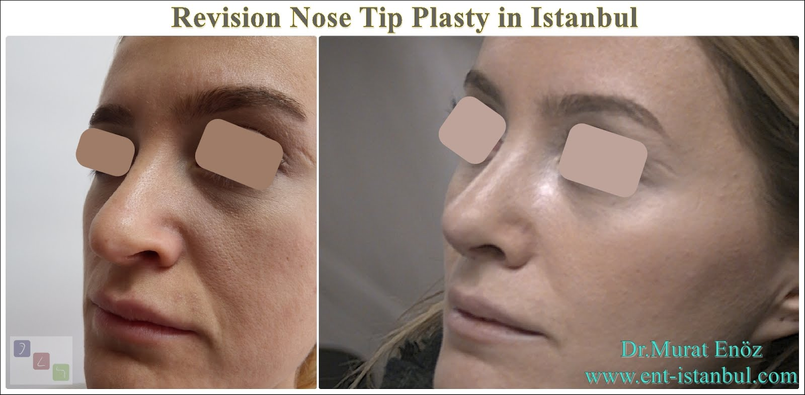 Revision Nose Tip Plasty in Istanbul