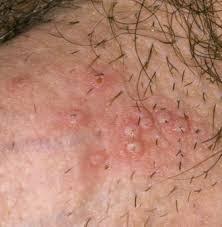Obat Bintik Bintik Merah Pada Batang Kemaluan Pria