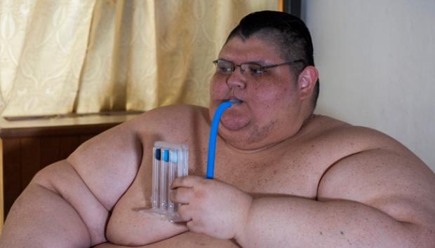 Pria Tergemuk di Dunia Ini Sukses Turunkan 170 Kg Berat Badannya