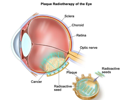 Retinoblastoma Treatment Guidelines