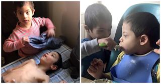 Παιδί 4 ετών με Σύνδρομο Down φροντίζει τα τρία ανάπηρα αδέλφια του και συγκινεί το διαδίκτυο