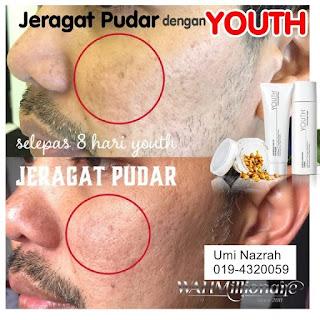 Testimoni Youth Skincare Shaklee Untuk Kulit Muka Lelaki