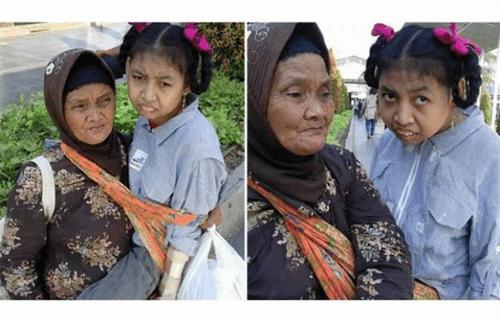 Nenek 74 tahun Gendong Cucunya dari Bogor ke RSCM