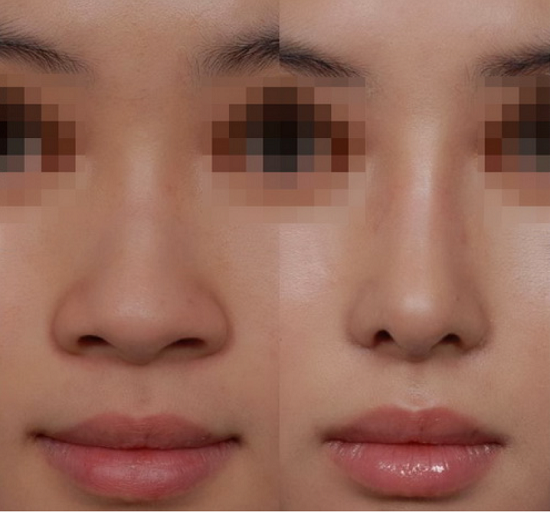 Thu gọn cánh mũi – Cánh mũi thon như sao Hàn