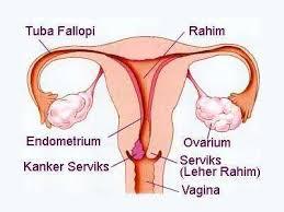 obat radang mulut rahim di apotik