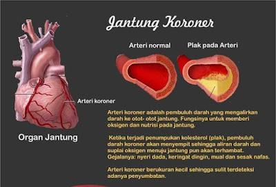 Terapi Alami Jantung Koroner Menggunakan Minyak Varash