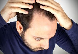 Saç Dökülmesini Engelleme Tavsiyeleri