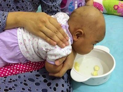 Trik Buang Dahak dan Lendir Bayi Tanpa Obat