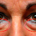 LEARN THE BEST NATURAL TREATMENTS TO REMOVE DARK CIRCLES AND BAGS UNDER THE EYES