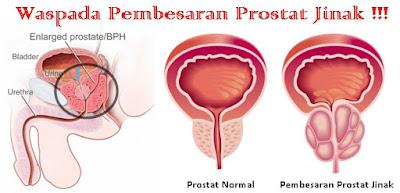 Cara Mengobati Prostat Yang Membesar Secara Alami