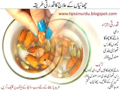 Chaiyan and black face spot Urdu Hindi