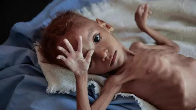 PBB: 113 Juta Orang Lebih di Dunia Alami Kelaparan Akut