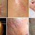 Избавьтесь от шрамов на любой части вашего тела менее, чем за месяц