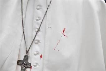 Giáo Hoàng bị tai nạn: Điềm báo thời cuối