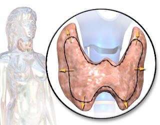 hipertiroidizm, meme kanseri