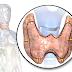Hipertiroidizm meme kanseri riskini artırıyor