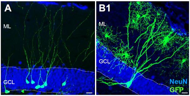 図:脳卒中で海馬神経細胞の奇形